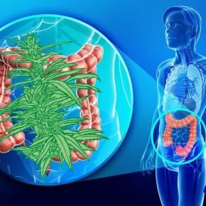 Medicina de puerta trasera: ¿Cómo cannabis Los supositorios pueden salvarvidas